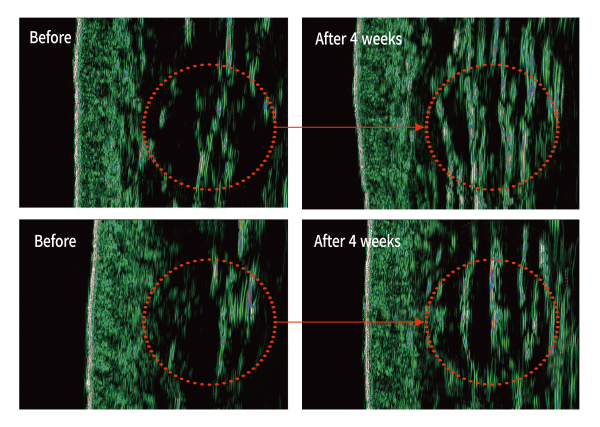 Epidermis thickness difference after Plasma Poration