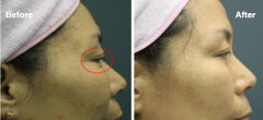 "Plasma Surgical™ <span class=""effect"">Blepharoplasty</span>"