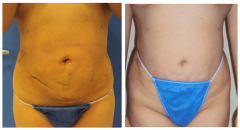Stretch Marks 6 Sessions in 3 weeks