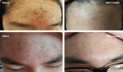 "Plasma Poration™<span class=""effect"">ACNE & Pole tightening</span>"